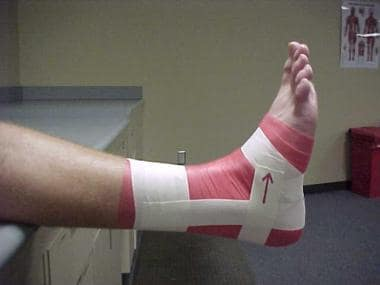 Ankle taping and bracing. First horseshoe.