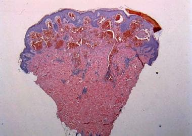Low-magnification histologic view reveals some hyp