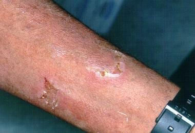 A 41-year-old woman of Puerto Rican origin with a