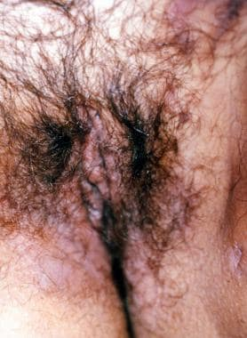 Vulvar and inguinal indurations.
