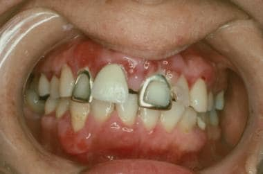 Swelling of the gingival mucosa around the right l