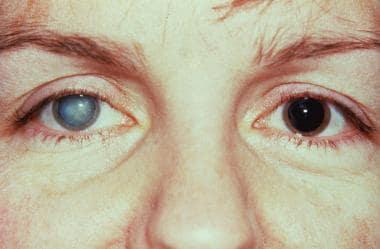 Fuchs heterochromic iridocyclitis with cataract an
