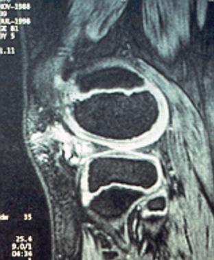 MRI of a pedunculated synovial hemangioma of the k