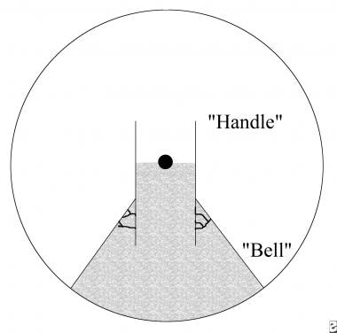 Diagram illustrating the layout of the bell flap.