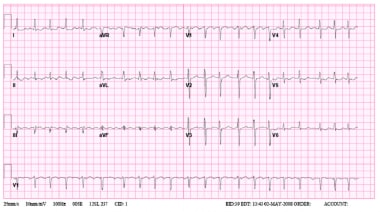 Atypical left atrial flutter.