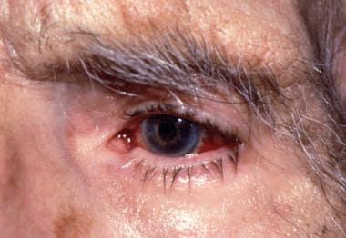 Unilateral episcleritis. Courtesy of Gregory J. Ra