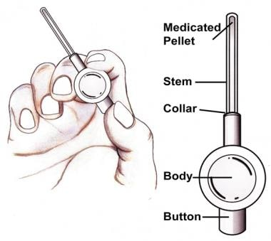 The Medicated Urethral System for Erections (MUSE)