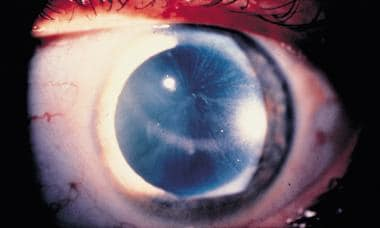 Corneal verticillata, commonly seen in patients wi