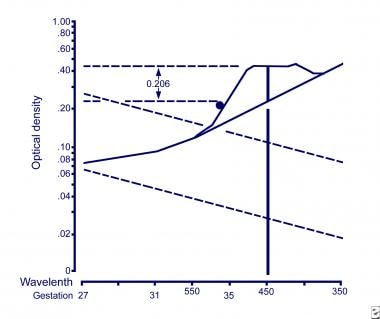 Liley curve. This graph illustrates an example of