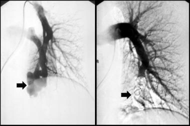 Hereditary hemorrhagic telangiectasia in a 50-year