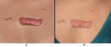 Keloid scar on the anterior chest before (A) and s