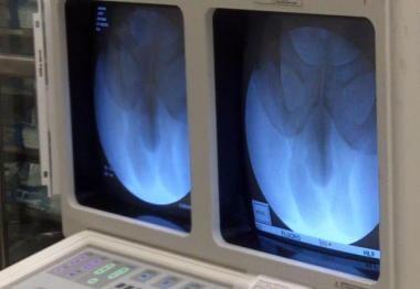 X-ray viewing setup for a retrograde urethrogram w