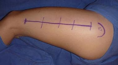 Location for thigh incision beginning just distal