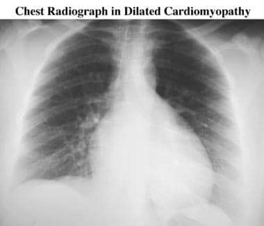 Five-year follow-up chest radiograph in a patient