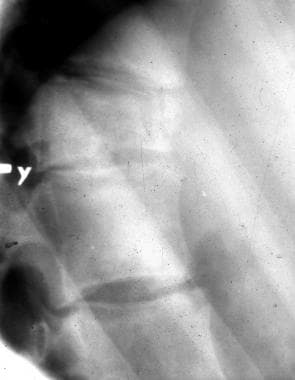 Lateral radiograph of the dorsal spine shows a wed