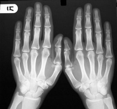 Radiograph of both hands shows small erosive chang