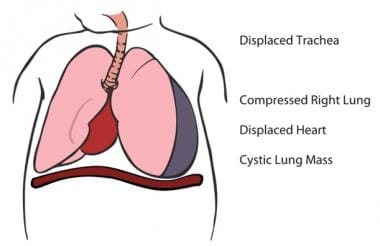 Diagram of cystic lung mass compressing the lung a
