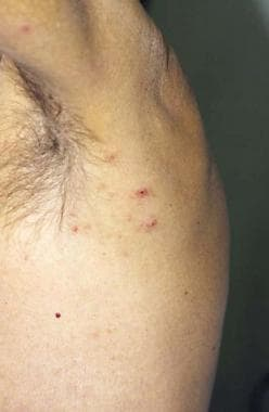 Lymphomatoid papulosis type A showing a cluster of