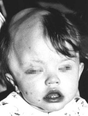 A child with Haberland syndrome. Apparent alopecia