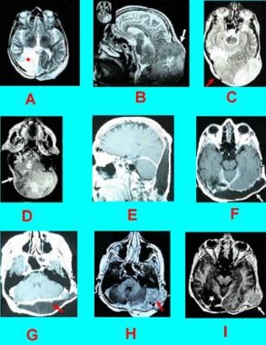 Case 4: Recurrent subcutaneous meningioma. A, Pati
