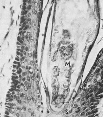 Eyelid section shows Demodex folliculorum (M) in t