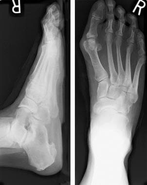 Anteroposterior and lateral radiographs, weightbea