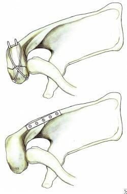 Fixation of acromion fractures. (A) tension band c