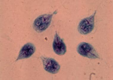 Giardia lamblia trophozoites in culture.