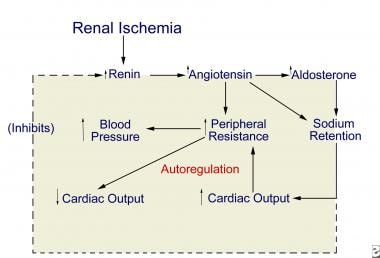 Proposed pathogenesis of renovascular hypertension
