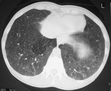 High-resolution CT (HRCT) scan shows a ground-glas