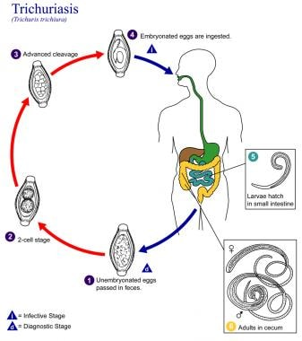 This is an illustration of the life cycle of Trich