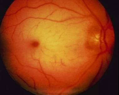 The cherry red spot of central retinal artery occl
