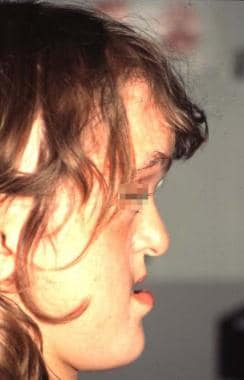 Lateral view of a patient with Apert syndrome. Not