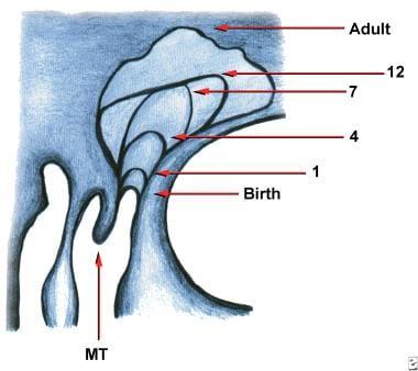Diagram of frontal sinus development.