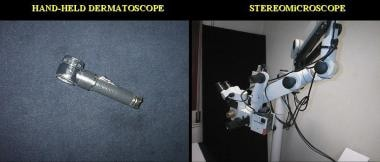 Hand-held dermatoscope and stereomicroscope.