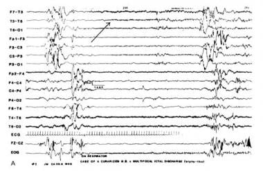 Multifocal electrographic seizure in a curarized i
