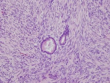 Medium magnification showing spindle cell sarcoma