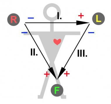 I, II and III represent the original three leads u