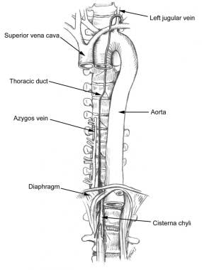 Chyle fistula. Anatomy of the thoracic duct in rel
