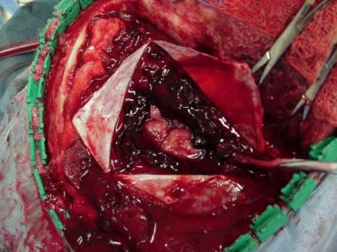 An acute subdural hematoma is shown in this intrao