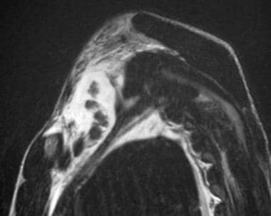 Avulsion in a 15-year-old male adolescent with pal