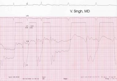 Pulmonary capillary wedge pressure (PCW) and left