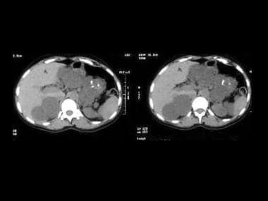Axial upper abdominal CT scans unenhanced and enha