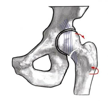 Image depicting a Garden I hip fracture.