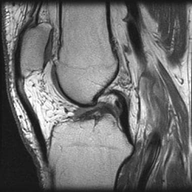 Chronic anterior cruciate ligament (ACL) tear. T1-