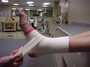 Ankle taping and bracing. First step of lateral he