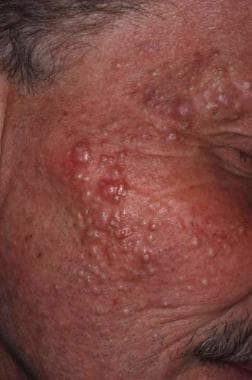 Numerous milia in a patient treated with vemurafen