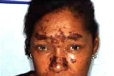 Multiple brown-red plaques on the face associated