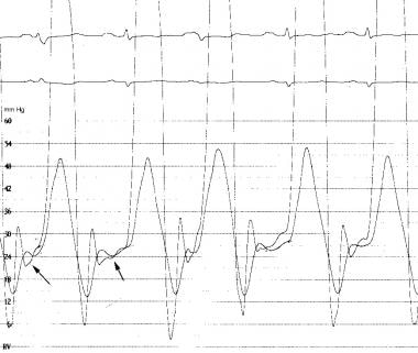 Simultaneous right and left ventricular pressure t