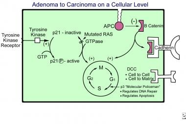 Adenoma-to-carcinoma sequence on a cellular level.